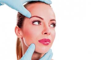LASER: elimina las venitas de la cara