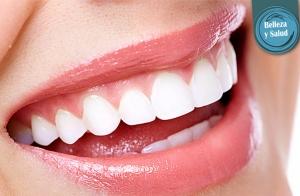 Blanqueamiento dental en sólo una sesión